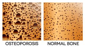 edcmed-links-osteoporosis